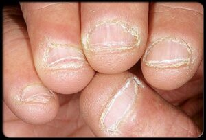 Dry Nails Treatment Pure Emu Oil